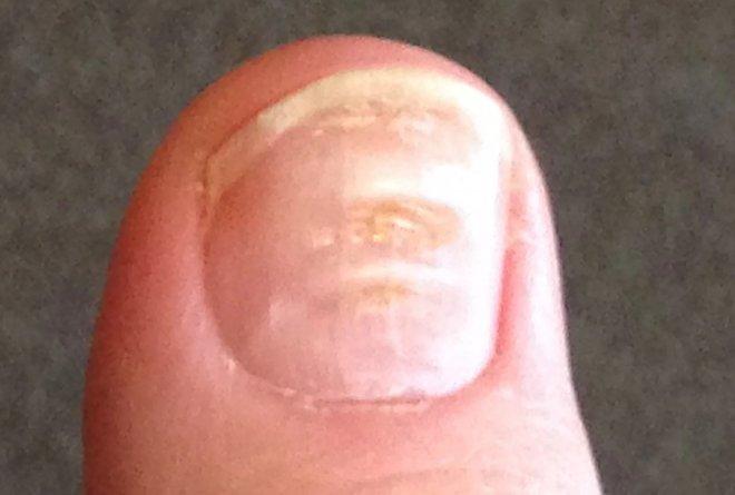 Лучшие новости о ковидных ногтях
