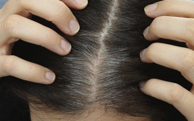 Лучшие новости о возвращении цвета поседевших волос